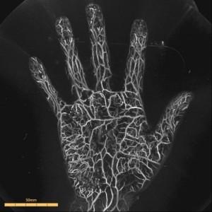 手のひらの血管がここまで見られます